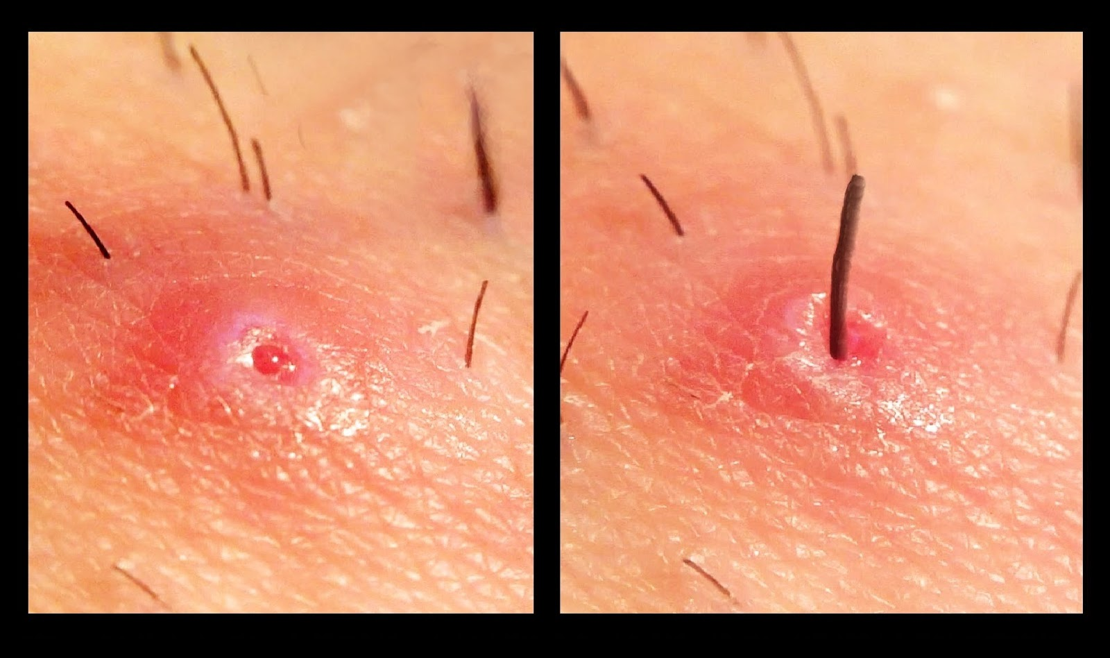 Common nowadays disease: ingrown hair