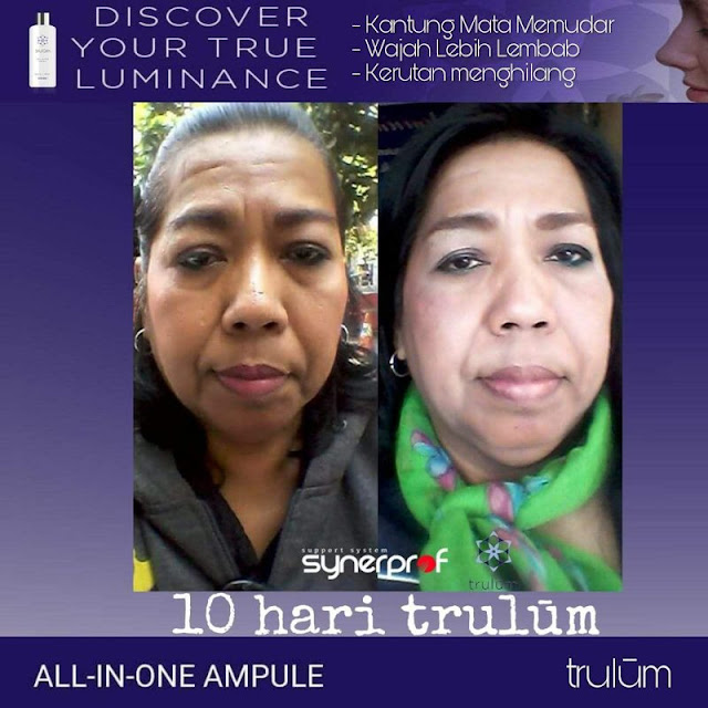 Makin Cantik atau Ganteng Tanpa Harus Ke Dokter Kecantikan di Nisam Aceh Utara