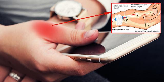 5 أنواع من الآلام يتسبب بها استعمال هاتفك لوقت طويل مع طريقة تجنبها