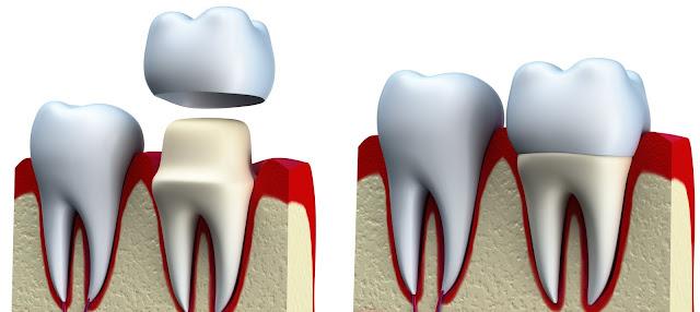 Harga Pasang Gigi Palsu Permanen dan Lepas Terbaru 2020