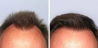 saç ekimi öncesi ve sonrası foto 4