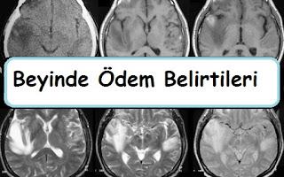 Beyinde Ödem Belirtileri