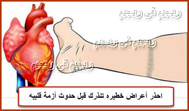 احذر أعراض خطيره تنذرك قبل حدوث أزمة قلبيه