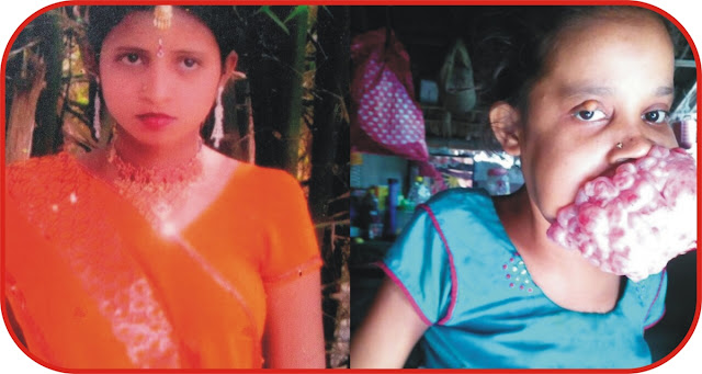 Teenage Indian girl who had mouth tumour