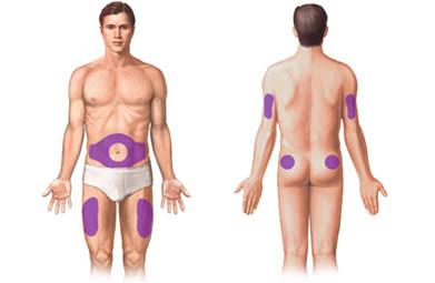 unde se administreaza insulina