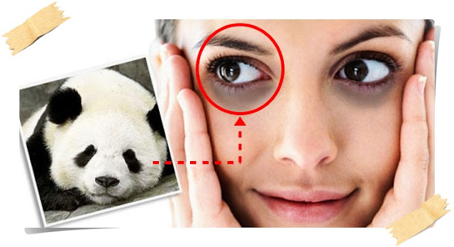 Tips berkesan menghilangkan lingkaran gelap bawah mata