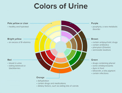 urine-colors-infographic