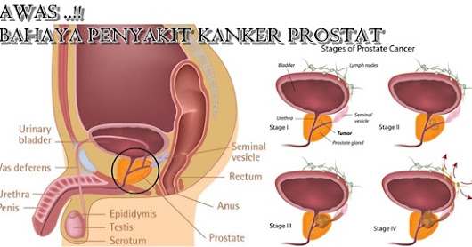What is the Prostate Cancer