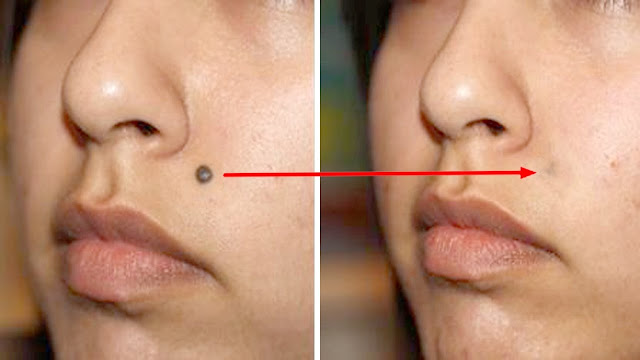 How To Easily Remove Skin Tags, Moles, Blackheads, Spots And Warts By Using Home Remedies