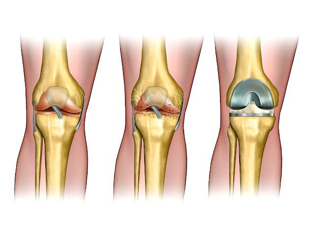 knee replacement|total knee replacement|knee replacement surgery|knee surgery|orthopedic treatment|orthopedic doctor|orthopedic surgeon|orthopedic examination|knee replacement surgery cost in india|cost of knee replacement surgery in india|joint replacement|knee replacement surgery in india|total knee replacement surgery in india|knee replacement (medical treatment)|knee pain treatment|total knee replacement surgery|hip replacement surgery|total hip replacement|hip replacement|knee arthritis|knee operation|total knee arthroplasty|orthopedic therapy|orthopaedic surgeon|hospital (hospital)|best price for total knee replacement surgery in india|total knee replacement cost in india|best knee replacement surgeon in delhi|cheapest total knee replacement surgery hospital in india|replacement|surgeon|best knee replacement surgeon in india|orthopedic surgery (medical specialty)|knee joint replacement|knee replacement india|live knee surgery|knee replacement surgery india|knee replacement surgery cost in gurgaon|hip replacement surgery in india|knee replacement surgery cost|best knee replacement surgeon in gurgaon|bilateral knee replacement|joint replacement surgery|bilateral knee replacement in india|knee replacement surgery cost in delhi|cost of total knee replacement in delhi|knee implant|knee arthoplasty|knee patients|bone replacement|artificial knee replacement|total knee surgery|gutno ka surgery|knee arthroplasty|hospital charges for knee replacement|charges of knee surgery in india|price of knee replacement|cost of knee surgery|orthopedic physician|orthopedic physical assessment|orthopaedic doctor|consultant orthopaedic surgeon|orthopaedic examination|knee replacement in hyderabad|fast track knee replacement surgery|hyderabad (indian city)|arthroplasty (medical treatment)|what are the best hospitals for knee replacement surgery in hyderabad?|best spine & knee replacement surgery hospitals in hyderabad|top knee replacement surgeon hyderabad|low cost total knee replacement in india|estimated cost of total knee replacement in india|knee replacement surgery in hyderabad|fast track total knee replacement surgery in india|knee replacement surgeon in hyderabad|best hospital for total knee replacement in india|low cost orthopedic surgery in india|best doctor for total knee repalcement in india|knee replacement surgery specialist in delhi|total knee replacement surgery cost in india|cost of total knee replacement surgery in india|cost estimate of total knee replacement surgery in india|surgery cost for total knee replacement in india|best total knee replacement surgeon in india.|low cost total knee replacement surgery in india|best joint replacement surgeon in india|stem cell knee treatment|best knee replacement surgeon in rajasthan|best knee replacement surgeon in jaipur|best orthopedic in delhi|knee replacement speciality|cost of knee replacement india|knee replacement cost chennai|cost knee replacement|best orthopedic in delhi india|best orthopaedic doctor|best knee replacement surgeon|knee replacement cost india|knee replacement with stryker implant|elbow replacement surgery procedure|treatment of knee arthritis without surgery|keyhole surgery for correction of knock knees|best arthroscopic specialist in india|knee repalcement surgery in mumbai|