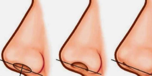 لن تصدقوا على ماذا يدل حجم فتحة الأنف و انت كيف يبدو شكل أنفك