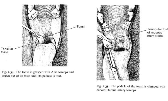 Operasi Tonsillectomy pada Anjing
