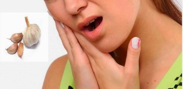 Penyebab Sakit Gigi dan Cara Mengatasinya