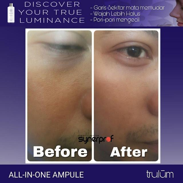 Bebas Bopeng Bekas Jerawat, Flek Hitam Tanpa Harus Laser Atau Ke Tempat Skin Care Di Pasar Kliwon Kota Surakarta