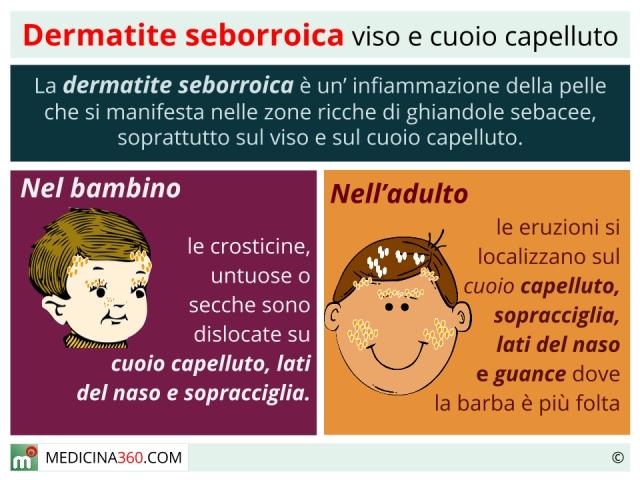 Eczema della pelle di clinica