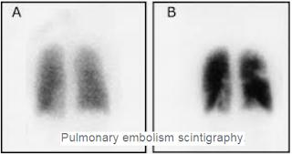 La scintigraphie de ventilation perfusion