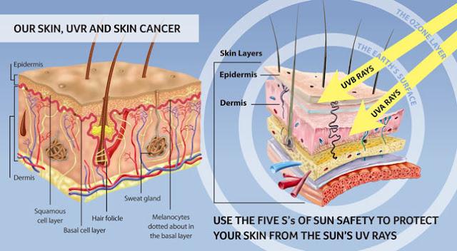 atasi masalah kulit akibat produk kosmetik