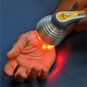 Terapia de Laser Para Tunel Carpiano