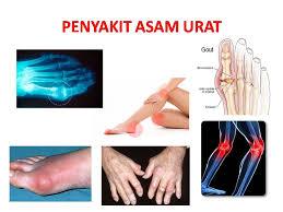 Gambar Jamu tradisional asam urat | obat asam urat kampung