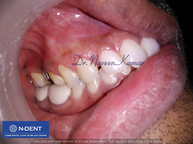 molar tooth implant - 640×480