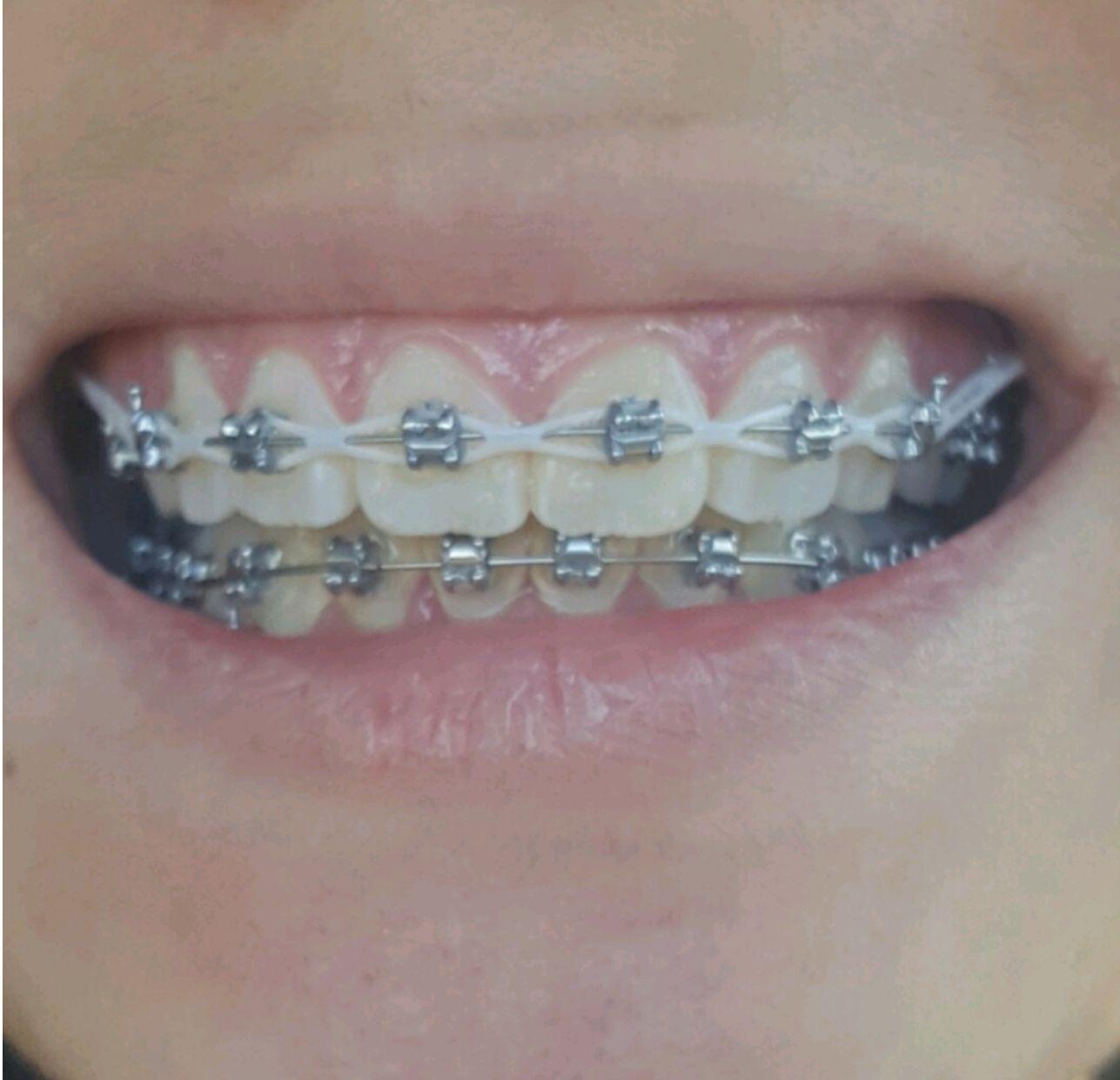 MyStoriesMyLife: Self aligning/ligating braces journey