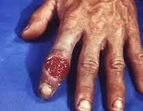 penyakit sipilis di tangan