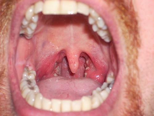 Get Rid Of Phlegm In The Throat 19