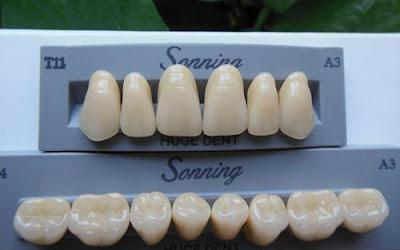 răng tạm được dùng sau khi cấy ghép implant -2