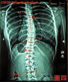 脊椎側彎, 脊椎度數,脊椎側彎矯正, 脊椎側彎矯正運動, 脊椎側彎治療, 脊椎側彎矯正成功案例, 脊椎側彎 復健, 脊椎側彎 推薦, 脊椎側彎 台中