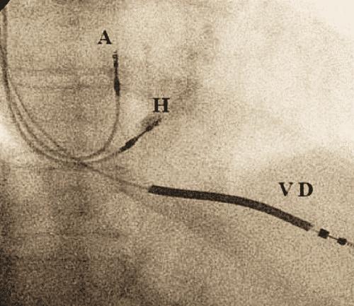 Dr.Nabil Paktin's Cardiology Blog مجله کاردیولوژی دکتور ...