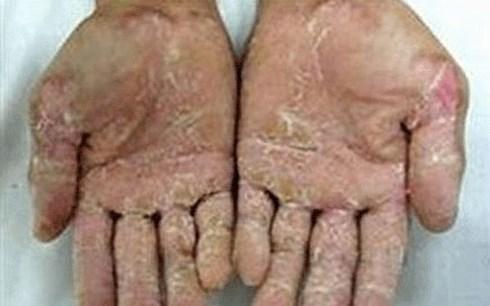 Quảng Ngãi tái phát hội chứng viêm da dày sừng