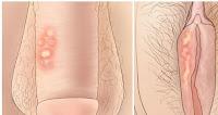 Efek Samping Penyakit Sipilis Tidak Disembuhkan