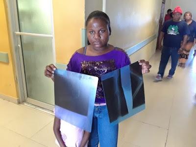 INCREIBLE!! Barahona rica en yeso y su hospital carece del material para enyesar a sus pacientes