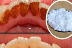 How you can remove it yourself without visiting the dentist