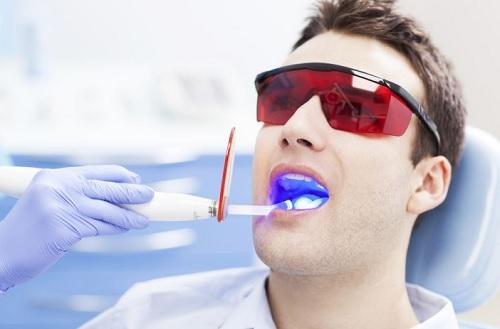 các vấn đề chưa biết khi tẩy trắng răng tại nha khoa -2