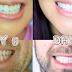 الوصفة الامريكية لتبيض الاسنان في وقت قصير (سوف تلاحظي الفرق )