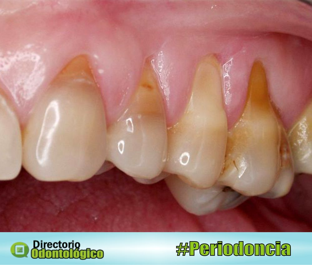 recesion-gingival