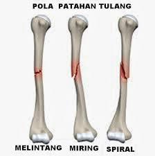 Cara Menangani Patah Tulang Kaki