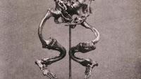 huesos esqueleto deforme