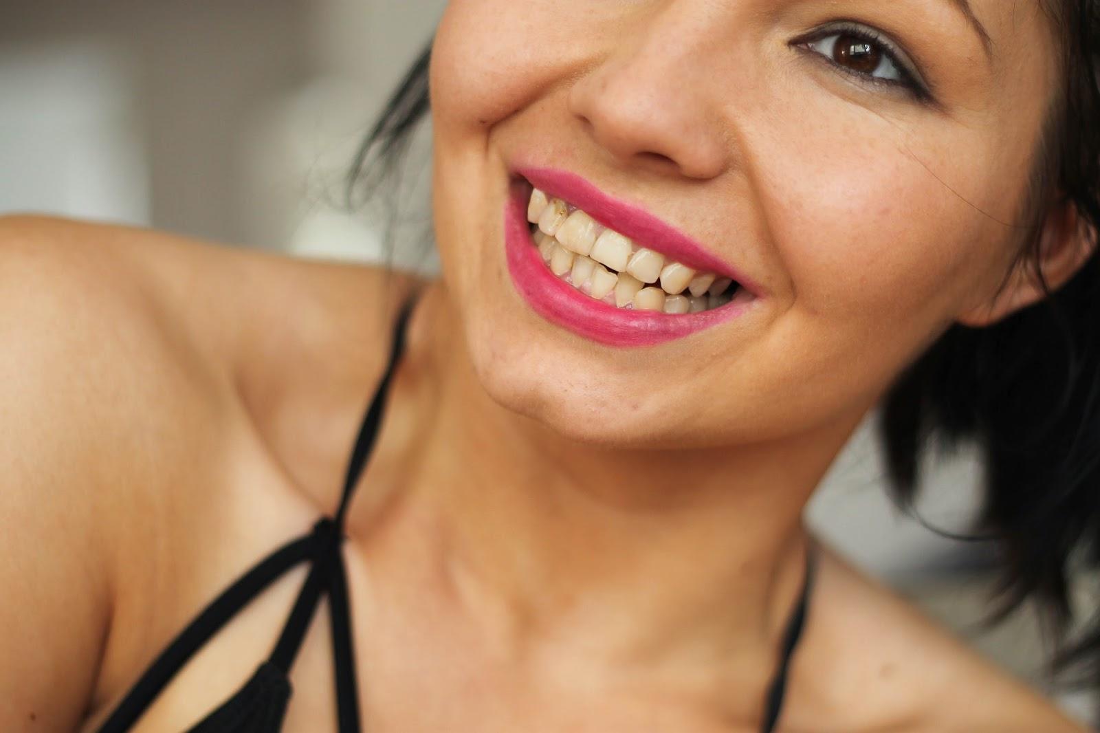 wybielanie zębów przed i po