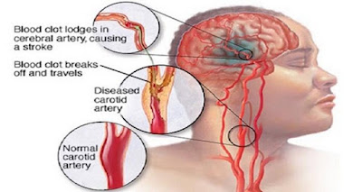 خمس مؤشرات تدل على اصابة الانسان بالسكته الدماغية