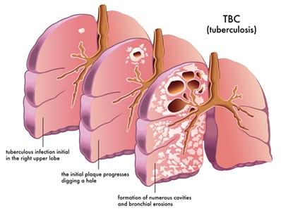 Ciri Ciri,Gejala,Penyebab Penyakit TBC & Obat Herbalnya