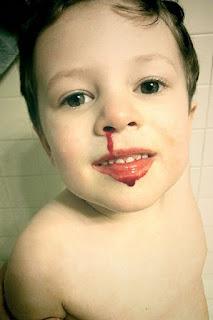 Penyebab Anak Sering Mimisan