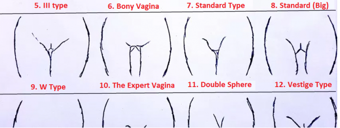 The Super Dry Vaginaso These Types Of Vaginas Are Always Dry Even During Sx You Cant Slip Into Them Without Lubricants Theyre Your Life Saver