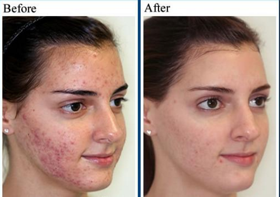 Acne Vulgaris Treatment How To Cure It Fast And Permanently Acne Vulgaris Blog