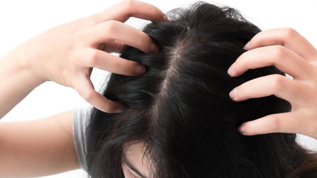 Tips Merawat Kesehatan Kulit Kepala