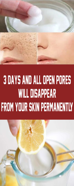 3 Days and All Open Pores Will Disappear From Your Skin Permanently