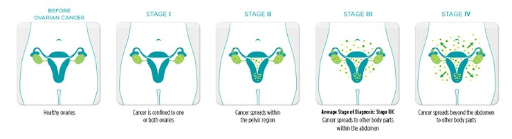 Uterine Cancer Types And Grades