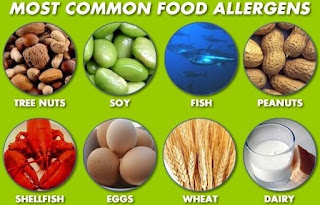 Food Allergy Symptoms Diagnosis Treatment and Prevention
