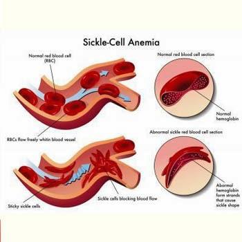Diet Untuk Pesakit Anemia